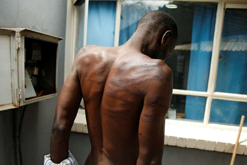 A man who was injured during violent protests is seen at a hospital in Harare, Zimbabwe, Jan. 16, 2019. The Zimbabwe bishops' justice and peace commission is collecting information on violence and human rights abuses in dioceses across the country.