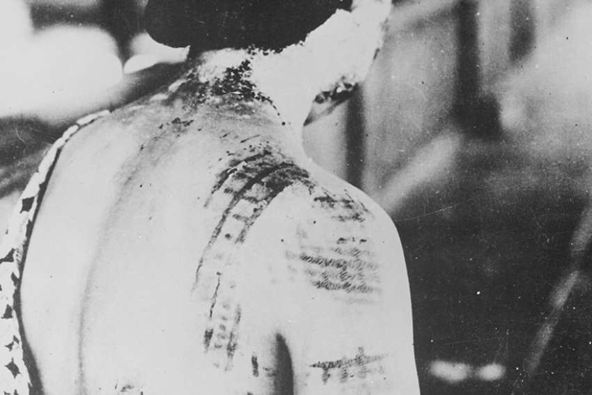 A Japanese woman suffers burns from thermal radiation after the United States dropped nuclear bombs on Japan in World War II.