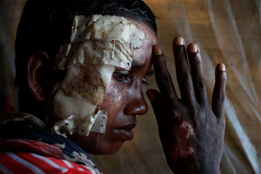 A Rohingya woman who says she was beaten and burned by soldiers in Myanmar poses for a photograph in late October at a refugee camp in Cox's Bazar, Bangladesh.
