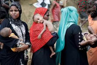 A severely malnourished child is seen as Rohingya refugees wait to receive aid Sept. 25 at a camp in Cox's Bazar, Bangladesh.