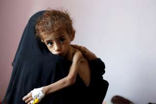 A woman holds a malnourished child Oct. 6 at a hospital in Sanaa, Yemen. Aid agencies and Catholic officials are sounding the alarm on Yemen's spiraling humanitarian crisis, calling on the combatants to end the war and make badly need assistance available.