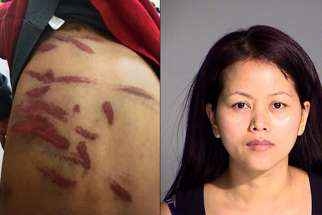 (LEFT) Some of the wounds suffered by the 7-year-old boy. Image is evidence filed in Marion (Ind.) Superior Court via The Indianapolis Star (RIGHT) Kin Park Thaing is suspected of beating her son with a plastic coat hanger.